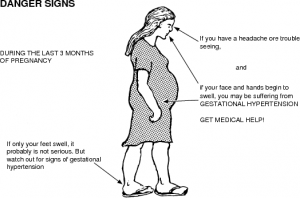 PIH symptoms