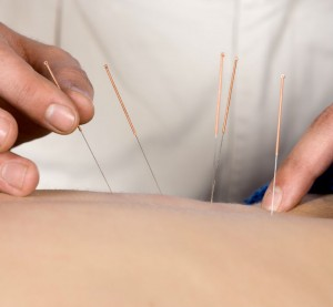 Acupuncture 270x250